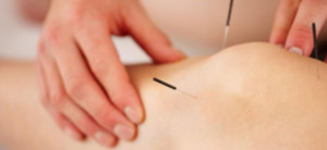 Electroacupuncture